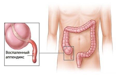 лишние органы в организме человека